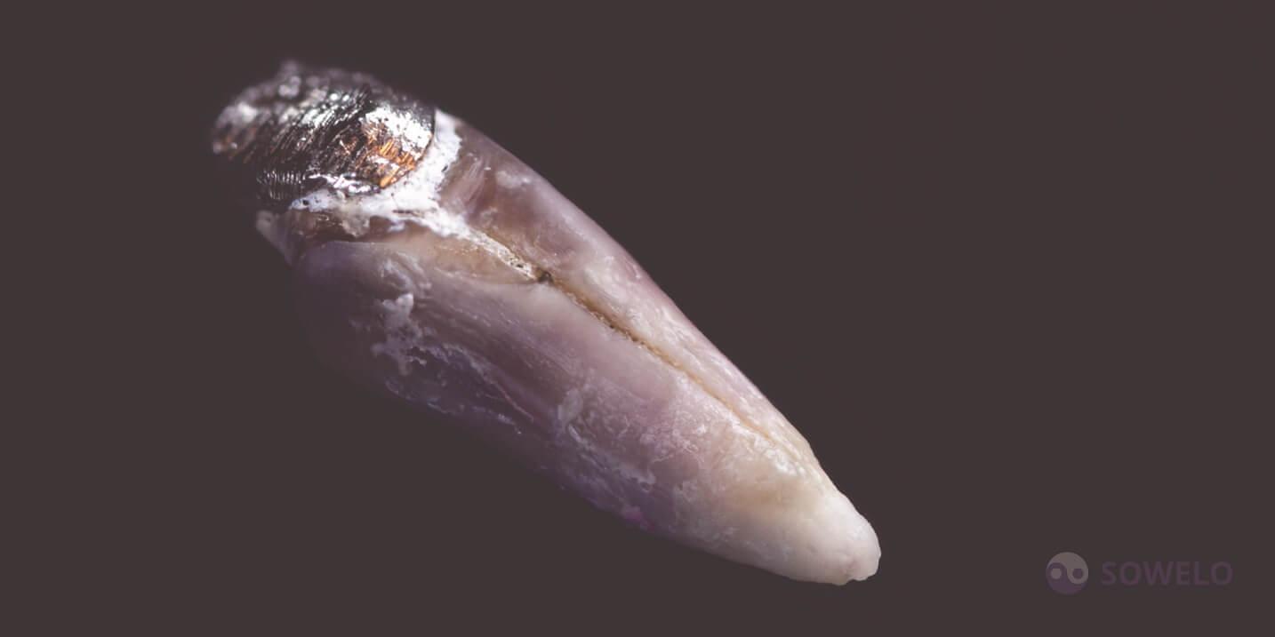 Počen zob zaradi kovinskega koreninskega zatička
