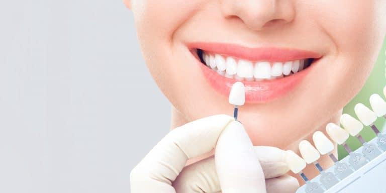 Barve zob ne moramo izbirati sami