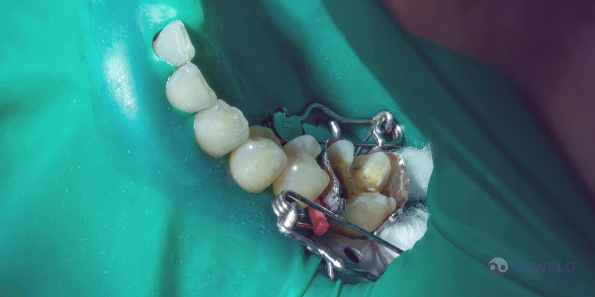 Viden karies na zobu