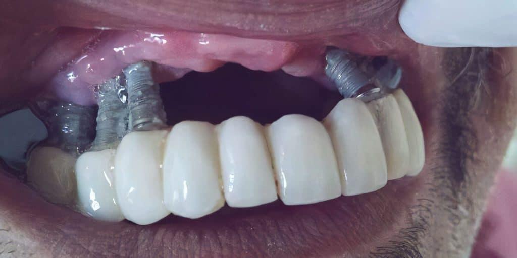 Hudo vnetje ob zobnem implantatu - periimplantitis