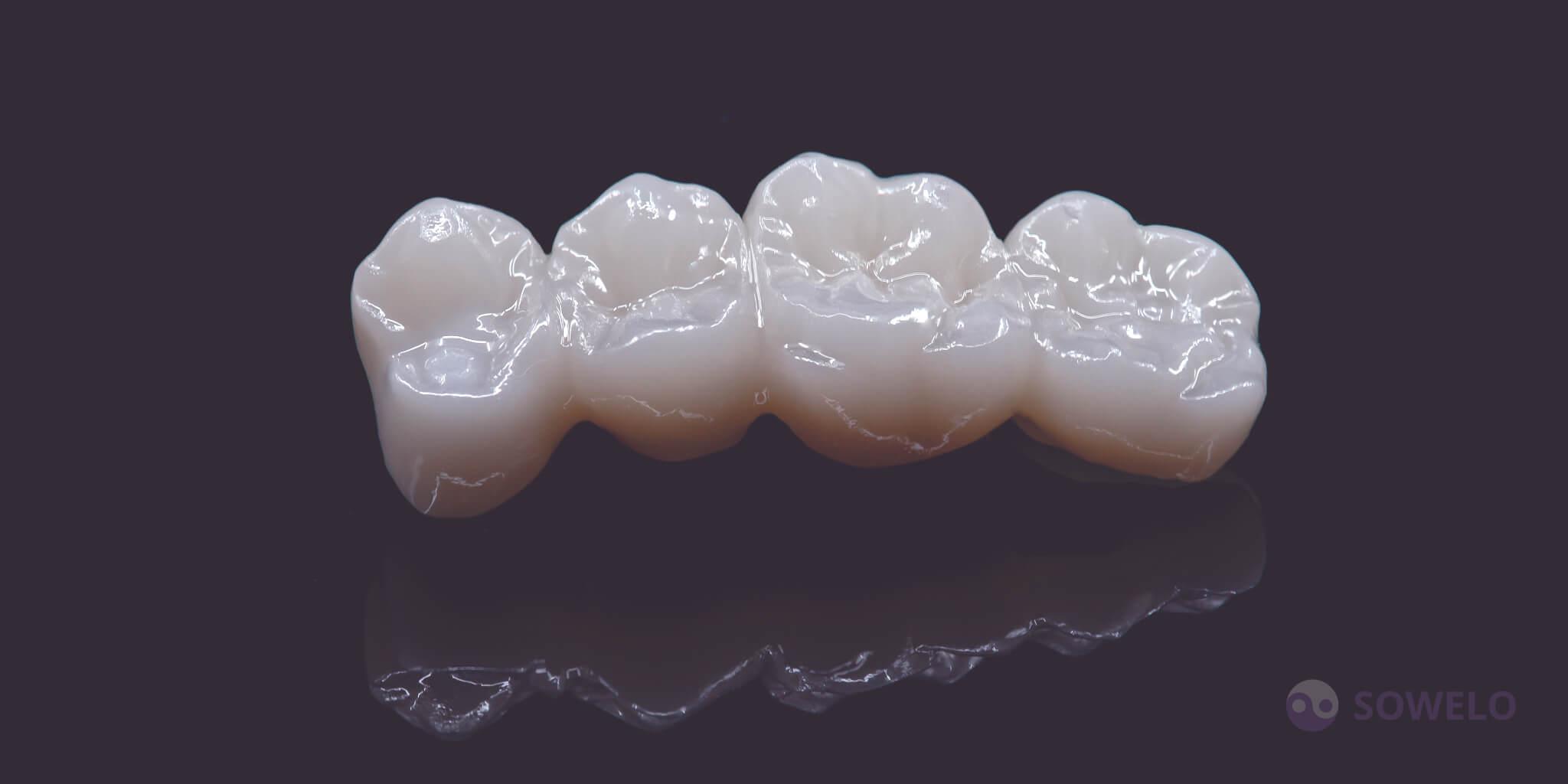 Cirkon zobni mostiček