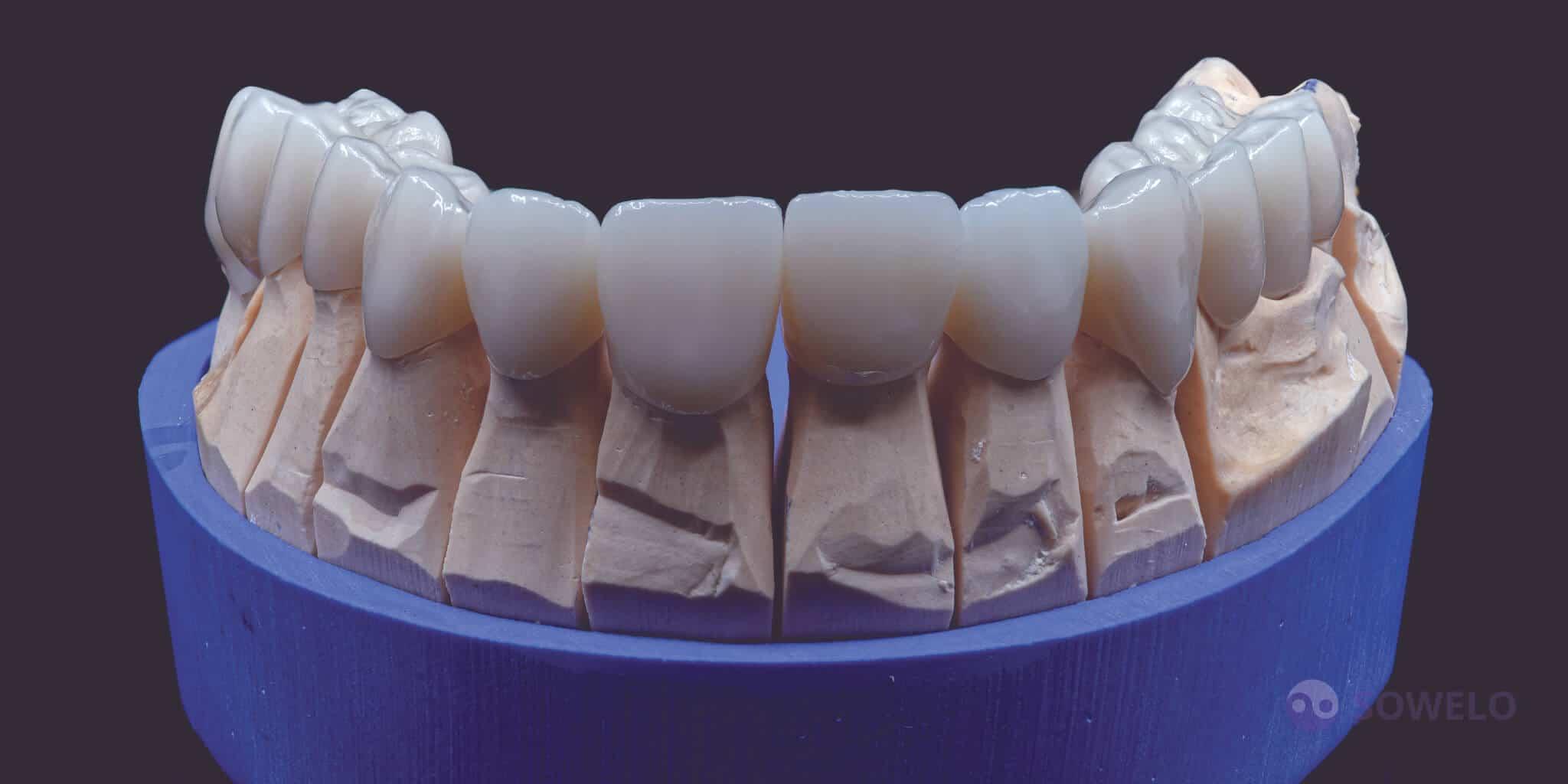 Cirkon zobni mostiček - podkev