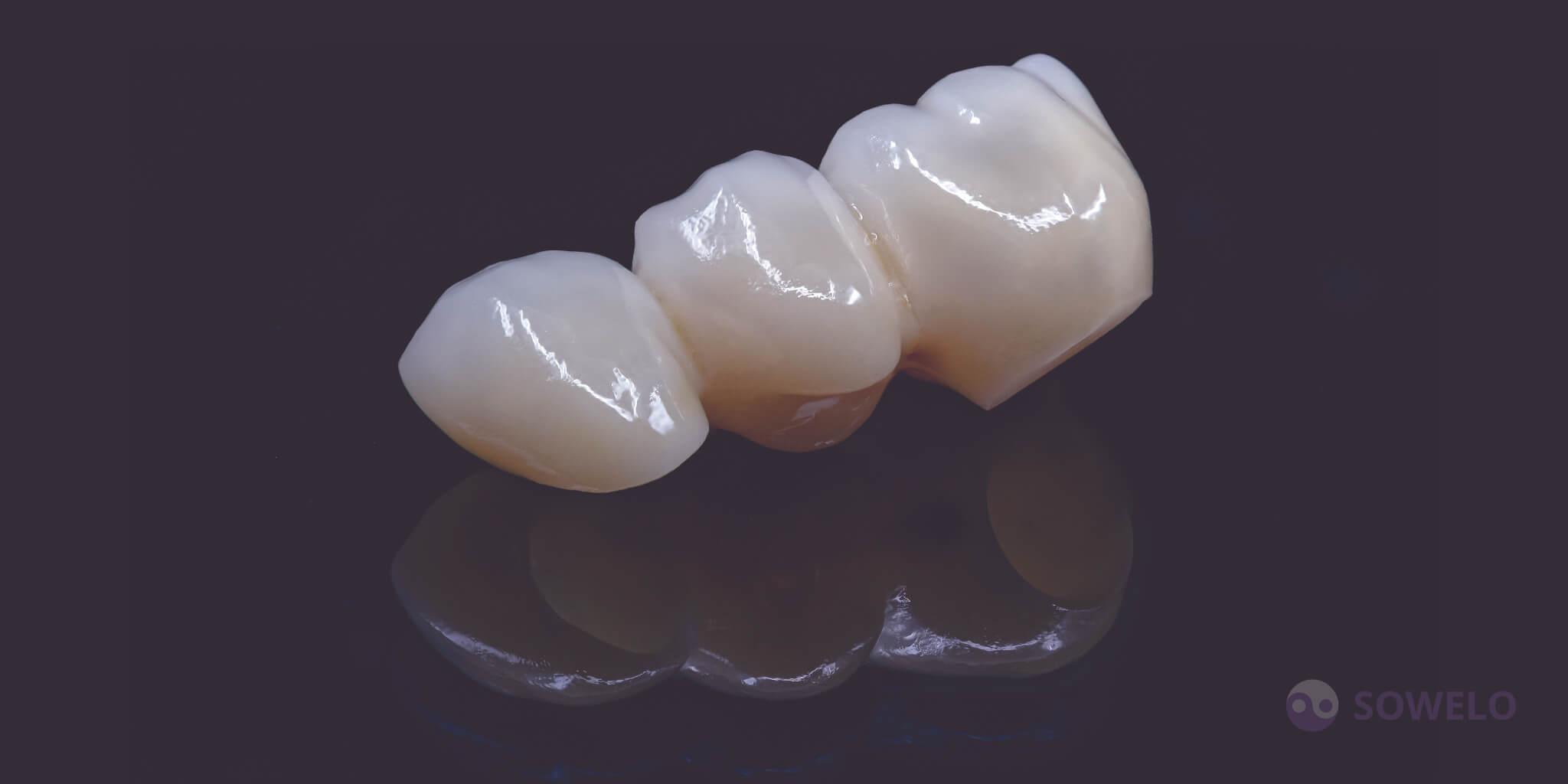 Cirkon zobni mostiček na zobu in implantatu