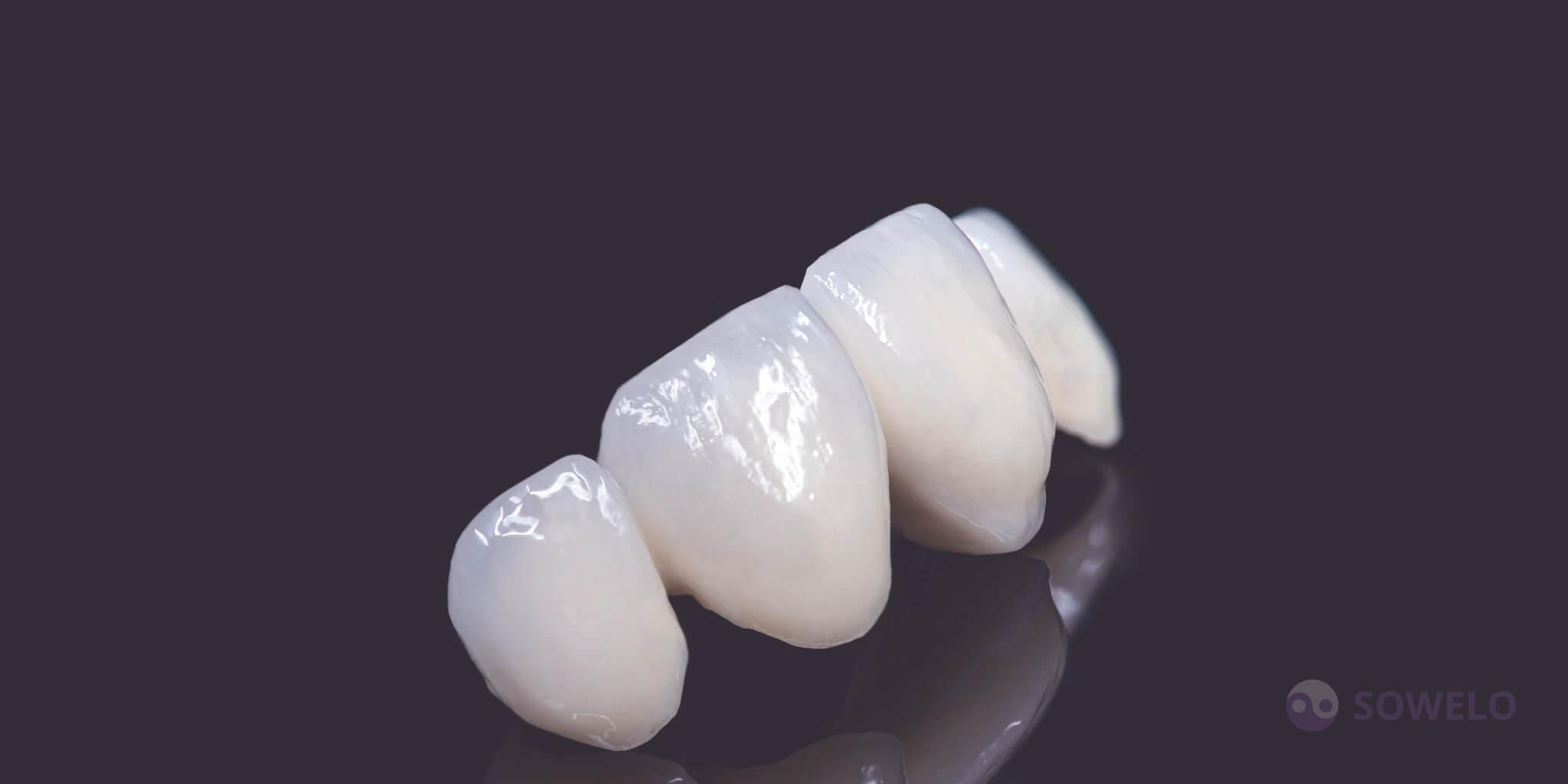 Kovinsko porcelanske zobne prevleke