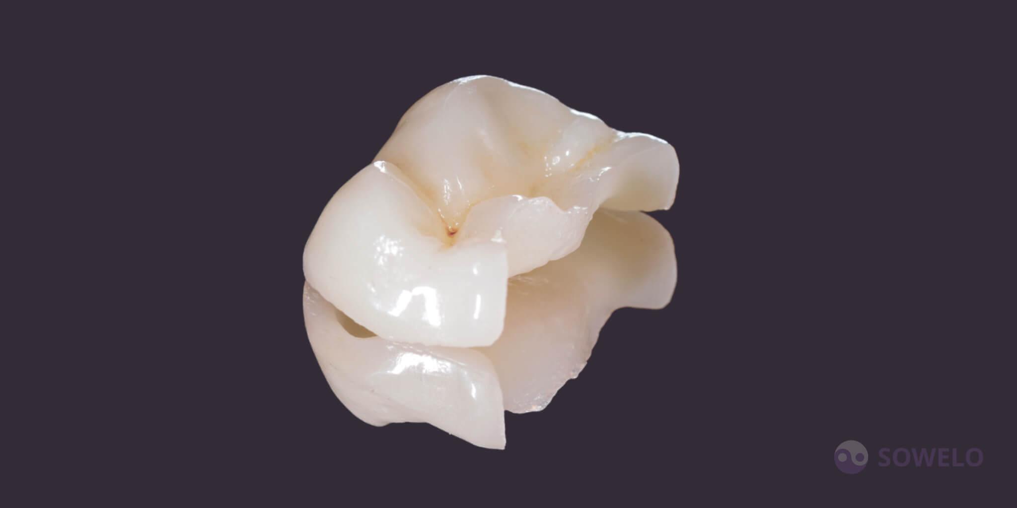 Inlayi, Onlayi ali Overlayi so odlična alternativa prevlekam in belim plombam za tiste, ki dajejo prednost minimalno invazivni terapiji, pri pripravi zoba ni potrebe po obsežnem brušenju kot pri prevleki in do manjše mere tudi beli plombi. Izdelani so iz porcelana in žlahtnih kovin (zlato). Izdelani so v zobotehničnem laboratoriju, tako sta njihova oblika in barva identični naravni anatomiji zoba. Griz in stiki s sosednjimi zobmi so popolnoma urejeni. Pri ustrezni higieni imajo dolgo življenjsko dobo; se ne obrabljajo in ne zabarvajo, tako kot bele plombe (zalivke).