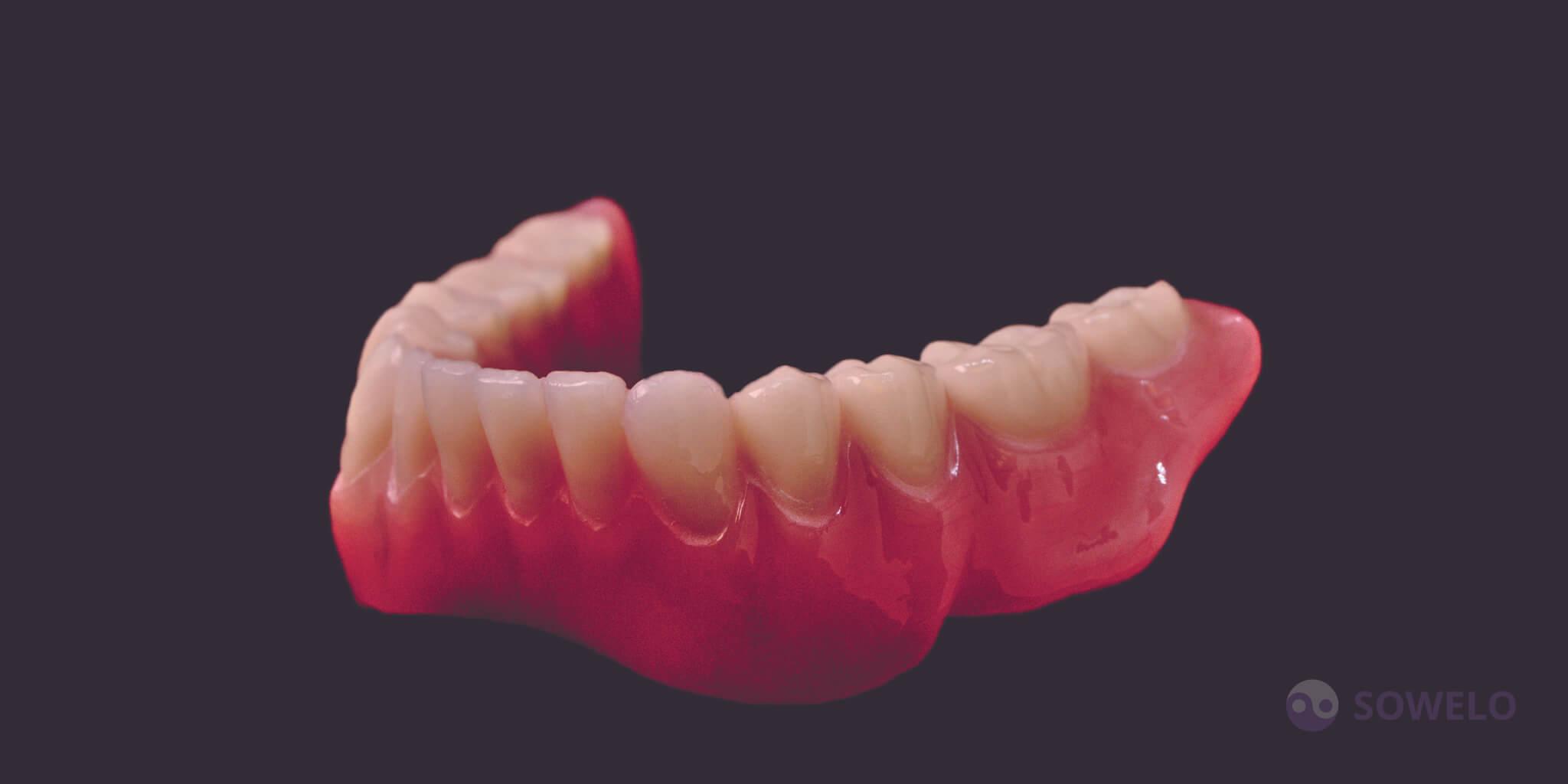 Totalna proteza je edina ne-implantološka možnost, kadar v ustih ni več nobenega zoba. Totalna proteza na zgornji čeljusti je napravljena tako, da se s pomočjo vakuma prisesa na nebo, tako ne izpade, ko odprete usta. Zaradi močnih vakuumskih sil je totalna proteza na zgornji čeljusti zelo dobro sprejeta; ne ovira govorjenja in prehranjevanja. V določenih primerih težavo predstavlja totalna proteza na spodnji čeljusti, saj lahko pride do močne resorpcije čeljustnih grebenov in posledično nestabilnosti; ni vakuma, ki bi fiksiral protezo - pada dol.