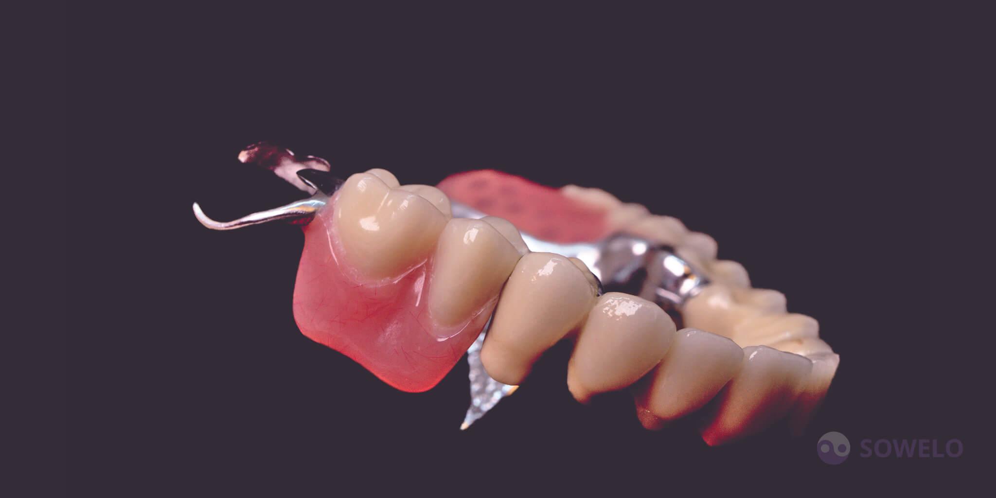 V primerih ko manjka več zob in ni možnosti, da obesimo prevleko ali mostiček na zdrave zobe, rešitev predstavljajo proteze. Izvrstna lastnost protez je v tem, da, ob pravilnem vzdrževanju, ne povzročajo dodatnih težav z dlesnimi, zobnimi koreninami ali čeljustjo. Proteze so funkcionalne in estetske. Proteze s kovinskim ogrodjem (wizil proteze), so odporne na deformacije in pokanje. So zelo dobro nosljive (pri uporabi npr. ce-ka sider, vario krogel) nič ne plešejo in ne pokajo.