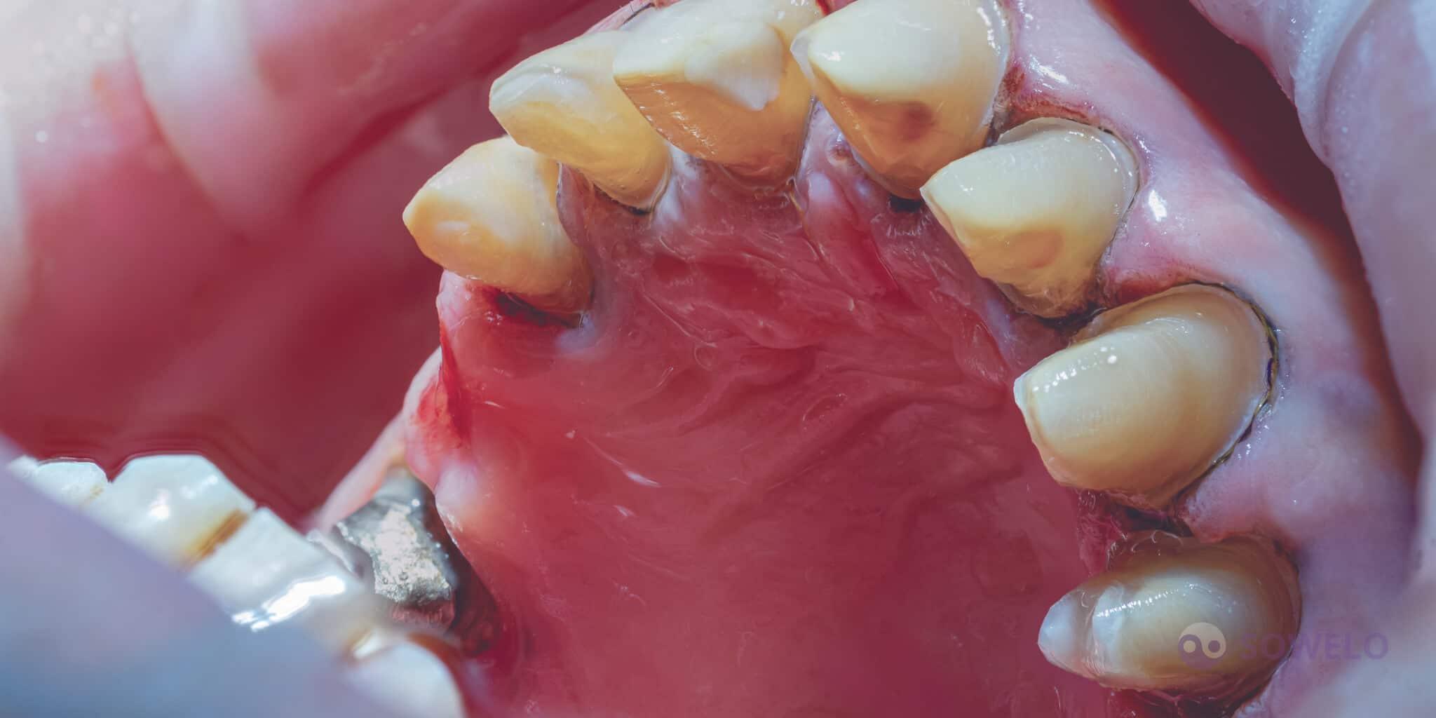 Zbrušeni zobje pripravljeni na odtis in protetiko